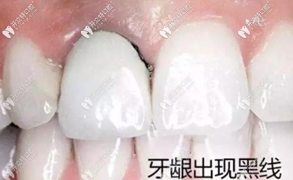 """太原美齿牙科做烤瓷牙和全瓷牙可""""以旧换新"""""""
