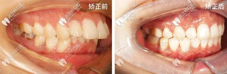 弹出一则龅牙矫正后脸型变化图,欧巴觉得正畸两万元花的值