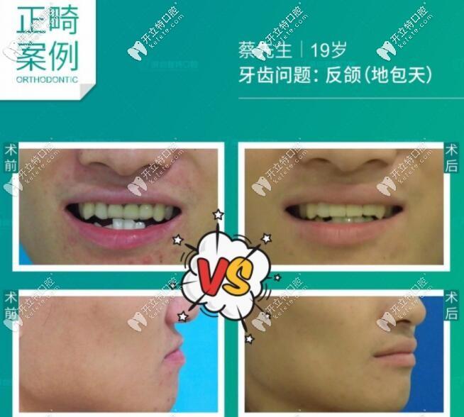 地包天牙齿矫正步骤复杂吗?刚做完反颌矫正的小哥哥要发言