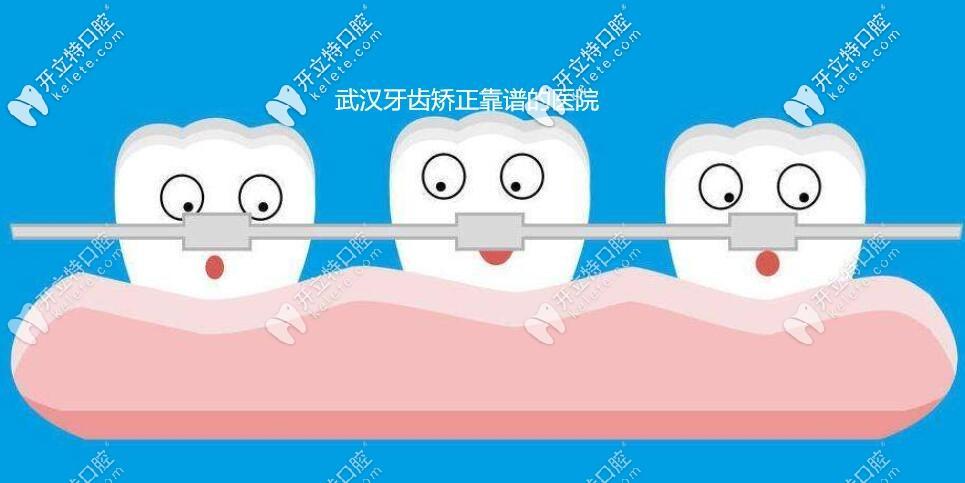 比选择武汉靠谱的牙齿矫正医院更重要的是正畸医生,知道嘛