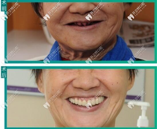 深圳登特口腔即拔即种全口种植牙案例