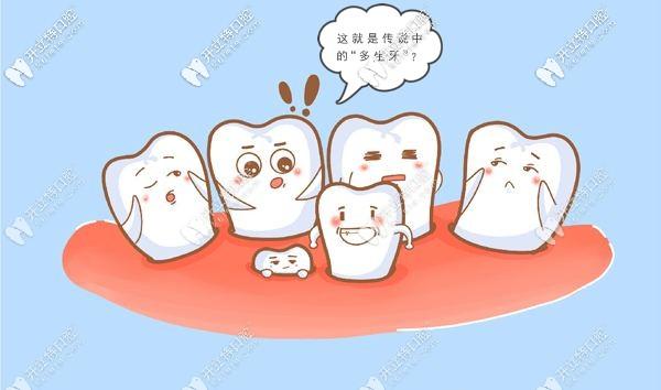 想看门牙多生牙矫正费用和效果图么,欢迎围观我的整牙贴哈
