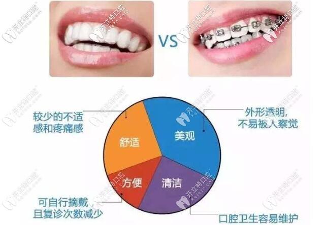 钢丝牙套和隐形牙套的区别