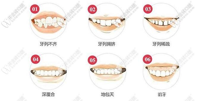 牙齿拥挤可能出现的情况