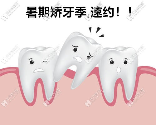 暑期矫正大放价,苏州做时代天使comfos牙套价格低到18000元起