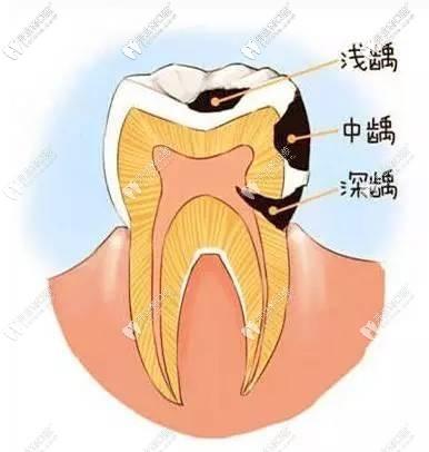 牙医科普之哪颗牙齿更容易发生龋齿,以及发生龋病的原因