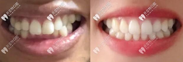 40岁矫正牙齿经历:重度深覆合摘下自锁牙套后笑起来很迷人