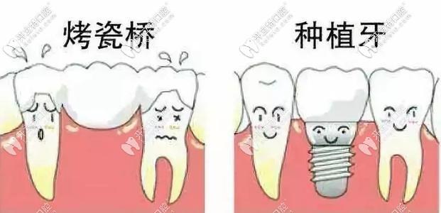 烤瓷牙和种植牙对比