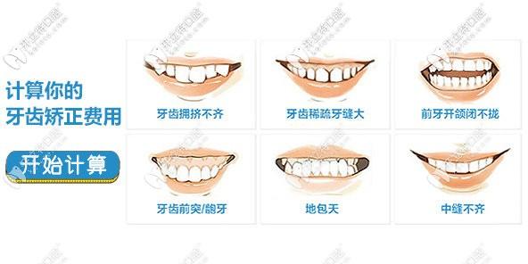 hello,洛阳做隐形牙齿矫正的价格表更新,速来查收