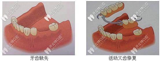 活动义齿修复