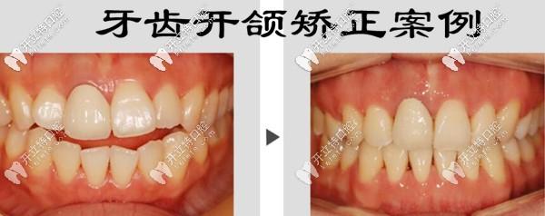 深圳福永世纪河山口腔牙齿开颌矫正案例