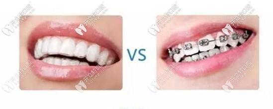 传统牙套和隐形矫正对比