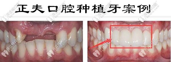 深圳福永正夫口腔种植牙案例