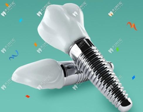 在上海永华口腔做瑞士ITI种植牙能免一颗费用你敢信么?
