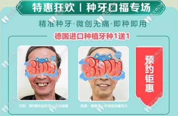 八月广州广大口腔的美国进口种植牙5750元就能带走哦