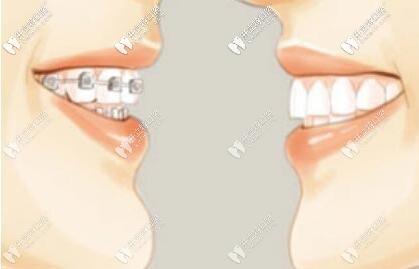 深挖mbt直丝弓矫正技术费用很贵吗?矫牙戴它好吗