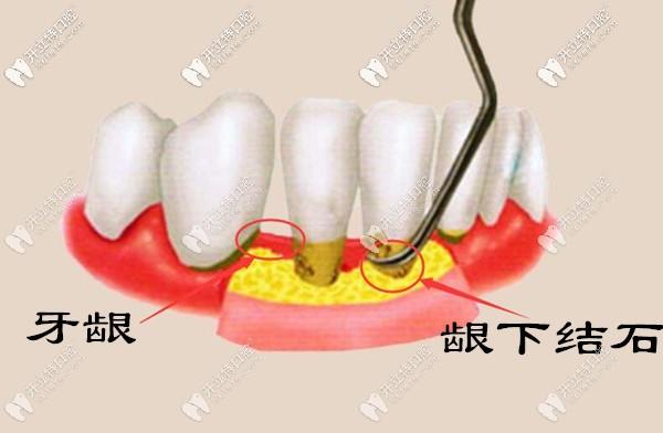 为什么牙结石会长到牙龈里面?龈下牙结石怎么处理?