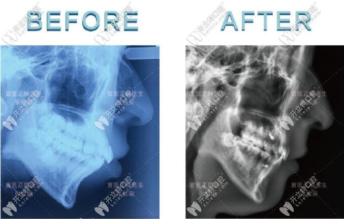 骨性凸嘴不想做正颌手术找张栋梁教授正畸后,脸型变化不小