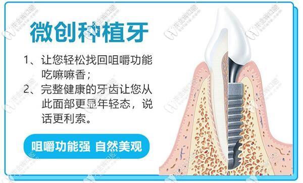 广州穗江口腔微创即刻种植牙技术