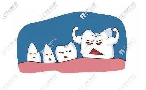 原来智齿不拔有这么大的危害,还会影响其他健康牙齿