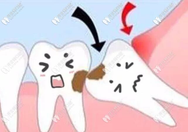 智齿不拔有什么危害吗