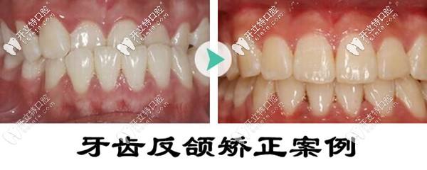 深圳圣浩齿科地包天牙齿矫正案例