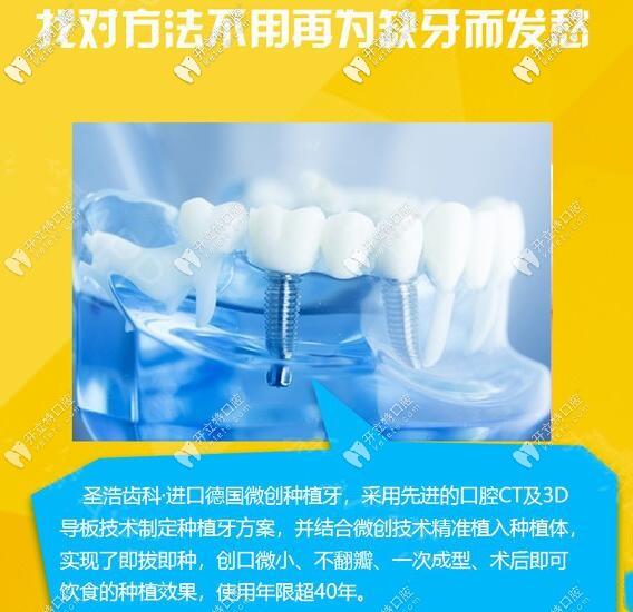 深圳圣浩口腔种植牙优势