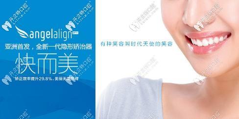 天津美奥口腔做时代天使无托槽牙套费用来袭,收费不高哟