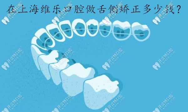 在上海维乐口腔做舌侧全隐形矫正一般需要多少钱