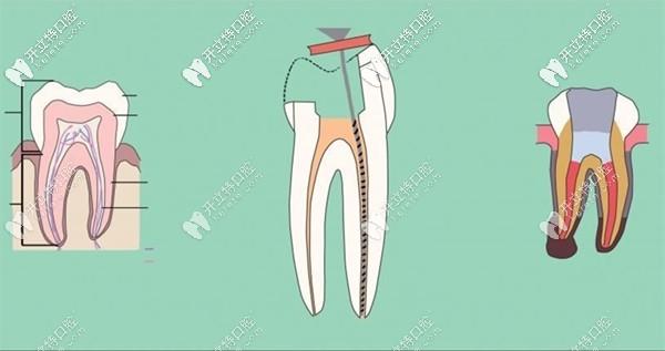 广州雅皓口腔的后磨牙根管治疗价格只要1770元起...