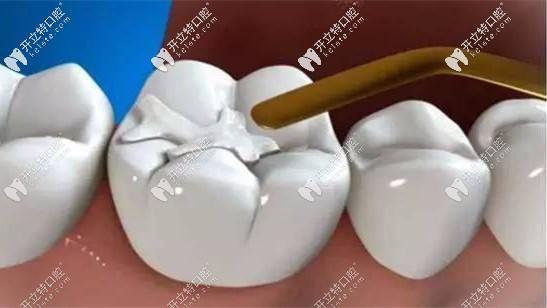 补后槽牙用3M纳米树脂的z350xt还是p60好?