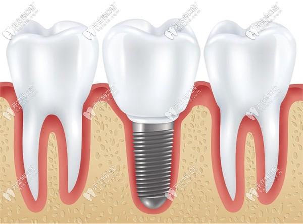 广州圣贝口腔的孙世尧详谈种植牙修复过程分几个步骤