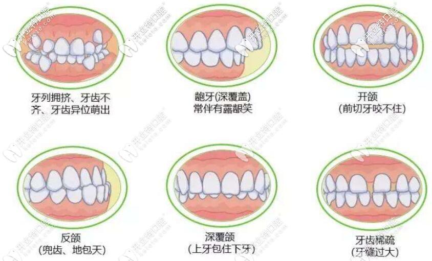 各种牙齿不齐趁早矫正