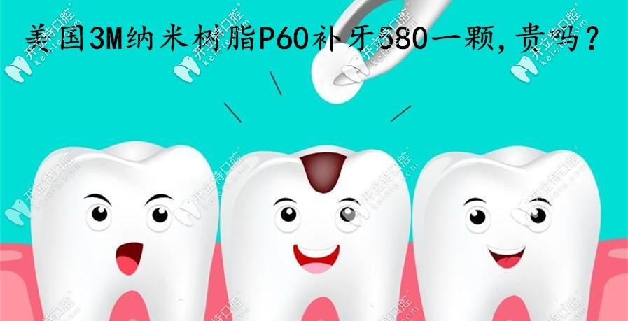 在烟台做美国3MP60纳米树脂补牙580一颗,这费用算贵吗