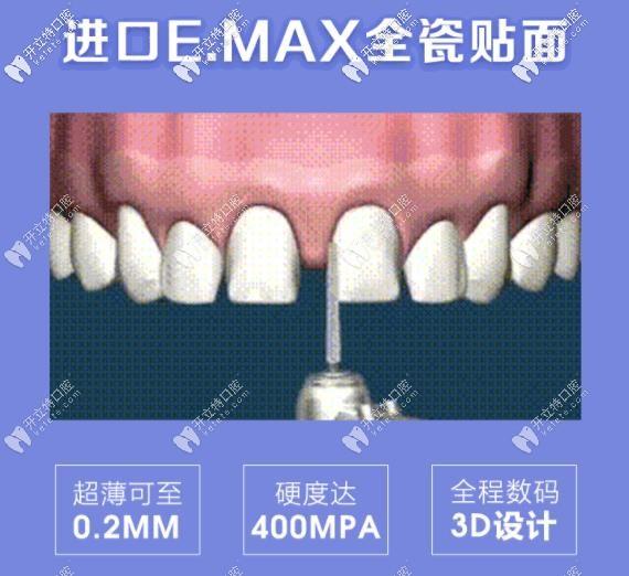 牙齿修复黑科技:emax贴面是铸瓷还是玻璃陶瓷你了解吗