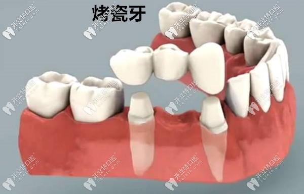 镶牙好还是做种植牙好呢