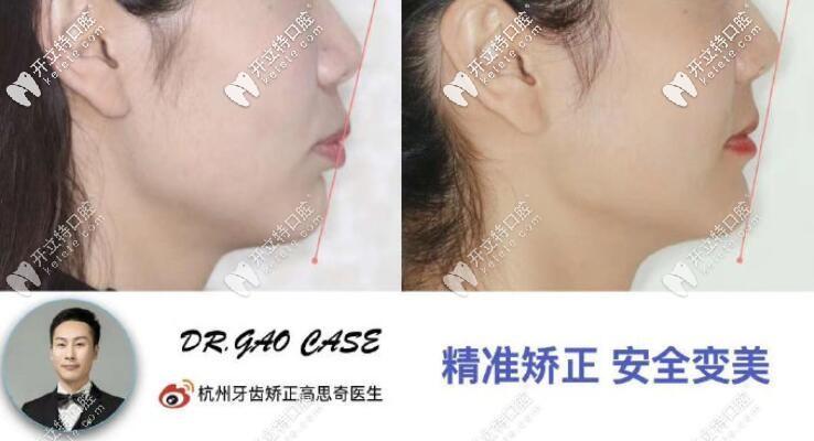刚整理的杭州美奥口腔凸嘴龅牙矫正案例及收费价格