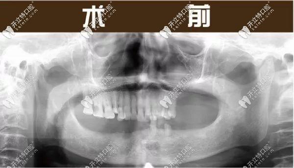 亲述:在杭州美奥口腔学院路店种4颗半口种植牙的感受