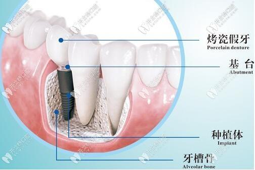 位于上海黄浦区的鼎植永博口腔做一颗进口种植牙要多少钱