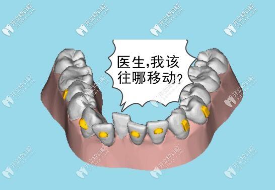 牙齿矫正时移动轨迹