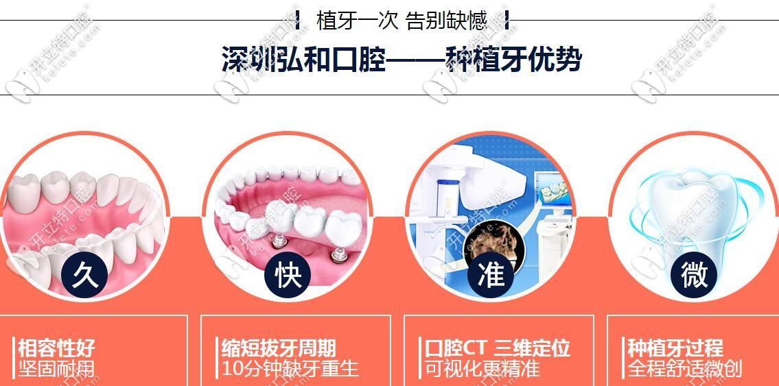 深圳弘和口腔种植牙优势