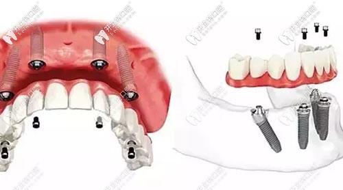 半口半固定种植牙