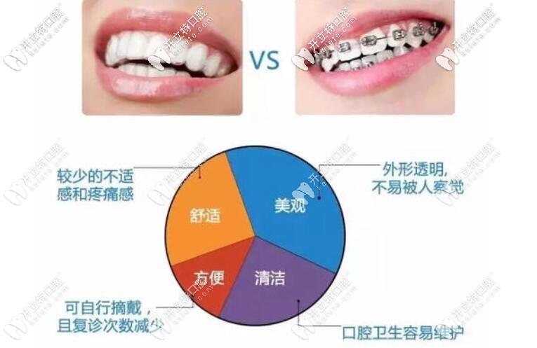 金属牙套和隐形牙套哪个好