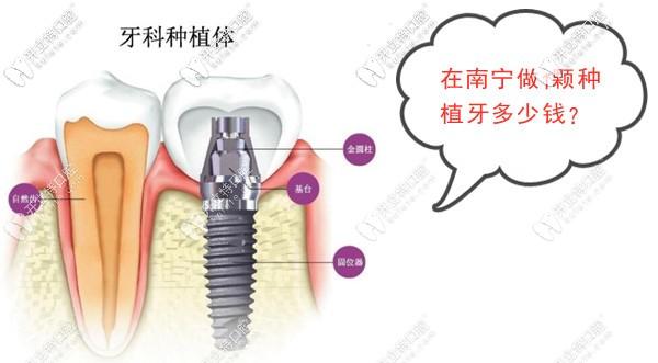 南宁做1颗种植牙的价格是多少钱?韩系和欧美进口的种植体