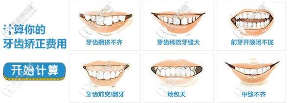 搜集到一份信阳伢牙齿科做牙齿矫正的价格表前来分享