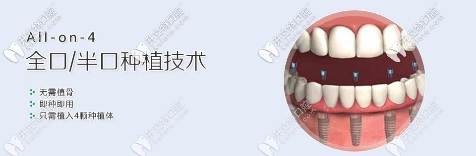 韩国奥齿泰种植系统ALL-ON-4全口种植牙价格在15万起