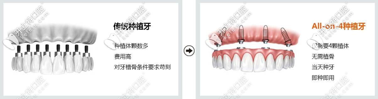 韩系奥齿泰ALL-on-4全口种植牙技术优点