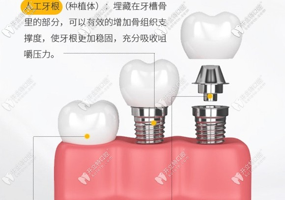 种植牙机构的示意图