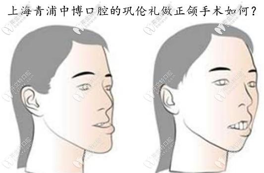青浦中博巩伦礼医生做正颌手术如何