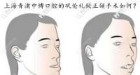 上海做地包天正颌手术的医生有谁,中博的巩伦礼医生如何